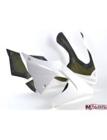 Tête de fourche polyester Motoforza Yamaha YZF-R1 / R1M 2015 à 2018